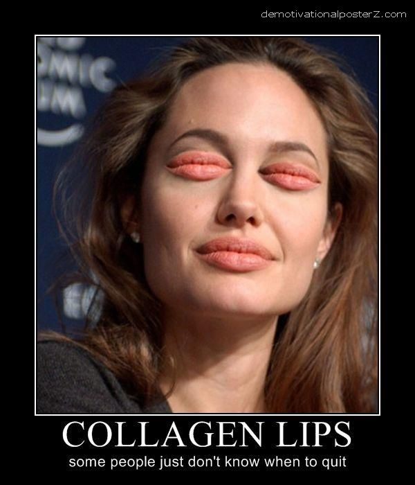 COLLAGEN LIPS - some people just don't know when to quit