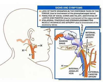 medical eponyms with explanations 70   ver  s syndrome