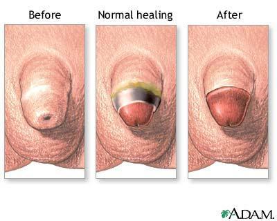 smegma removal for females