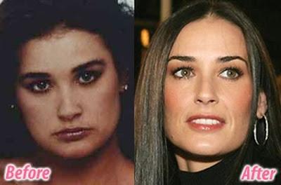 celebrity plastic surgery