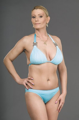 miss plastic surgery, Budapest, Hungary