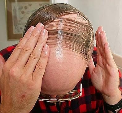bald men hairstyle
