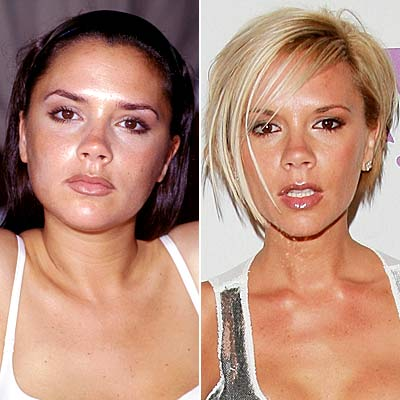 Plastic Surgery on Best Plastic Surgery  When Celebrity Plastic Surgery Has Gone Bad