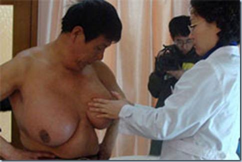 Guo Feng - Pria yang Memiliki Payudara