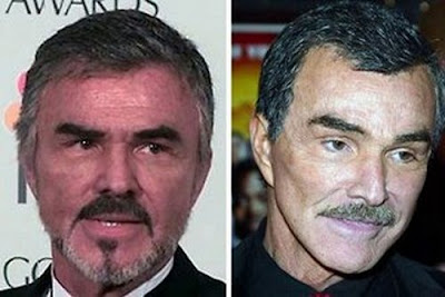 Burt Reynolds - before and after pictures of facelift? (image hosted by plasticcelebritysurgery.com)