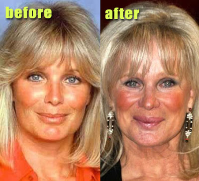 Linda Evans before and after plastic surgery? (image hosted by http://www.plasticcelebritysurgery.com)