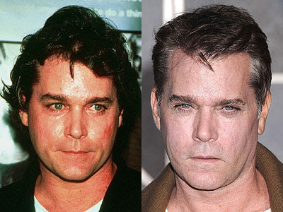ray liotta. Ray Liotta before and after