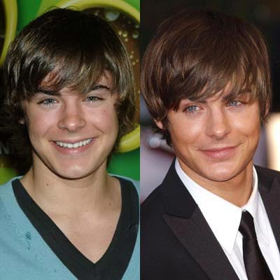 Zac Efron Nose Job ~ Plastic Surgery
