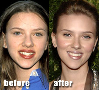 across countless starlets who have undergone cosmetic plastic surgery