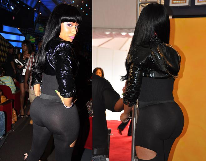 Nicki Minaj before and after butt implants plastic surgery?