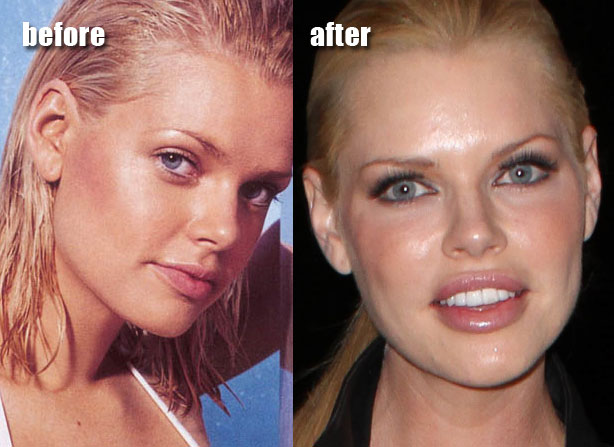 Lip Injection Before And After ...