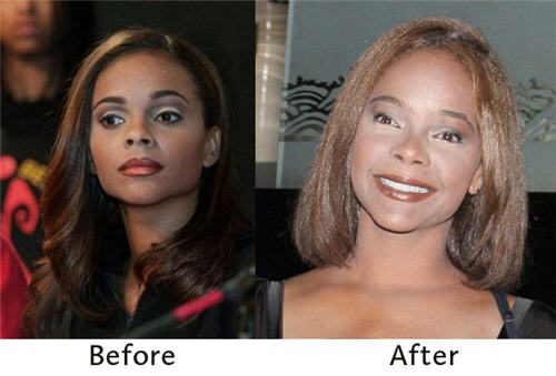 nicki minaj before and after plastic surgery pics. Lark Voorhies efore and after