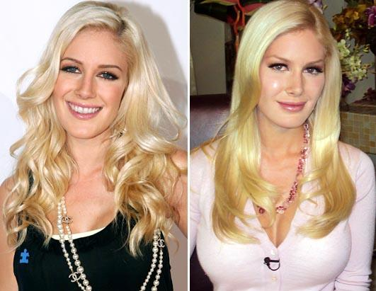 heidi montag plastic surgery 2010. Heidi Montag before and after
