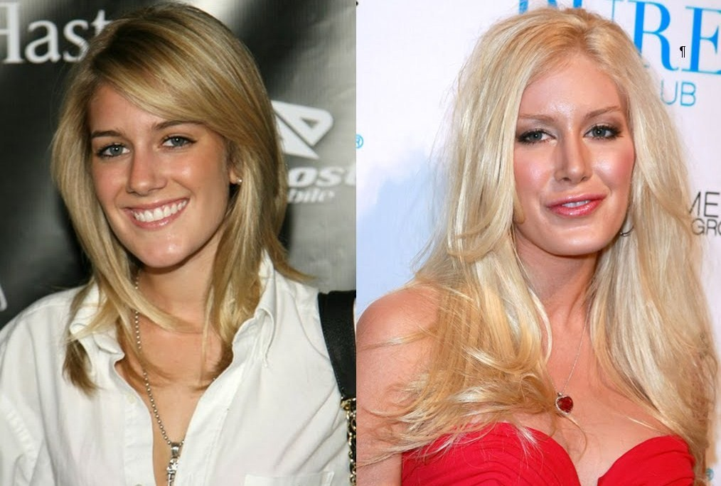 heidi montag before and after plastic surgery pictures. Heidi Montag Before And After