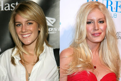 Heidi Montag Before And After Plastic Surgery heidi montag before after 2
