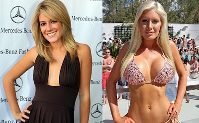 Heidi Montag Before And After Plastic Surgery heidi montag before after