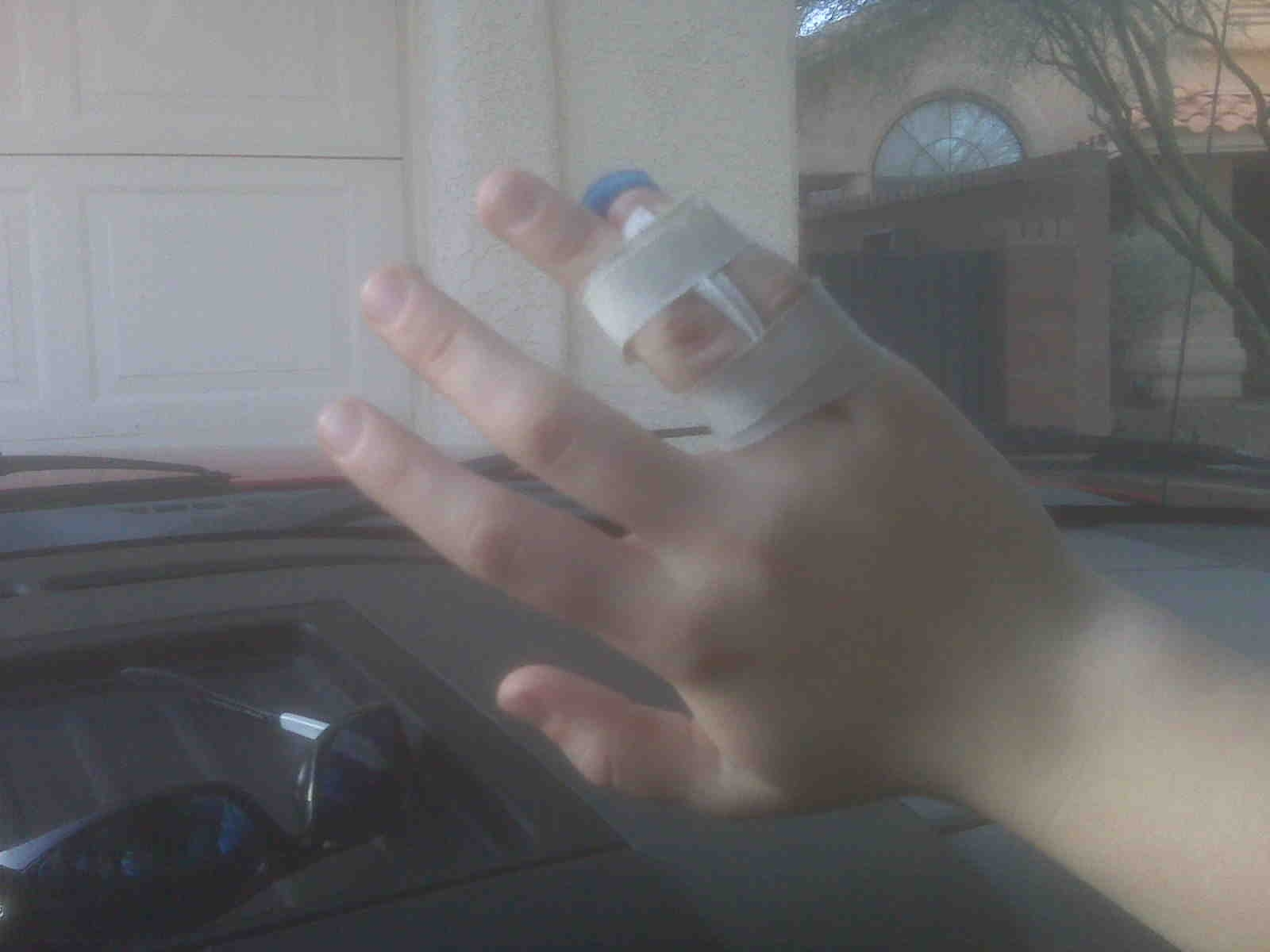 Avulsion Fracture Finger-2.bp.blogspot.com