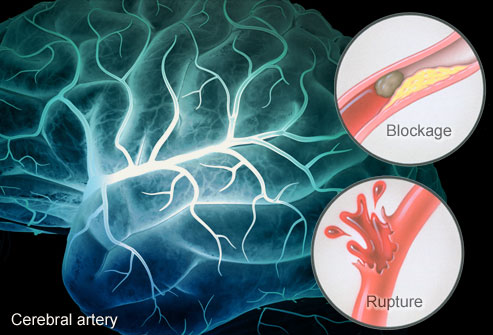 Blood vessel tangles in brain best left alone