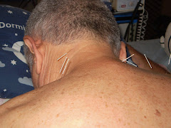 ACUPUNTURA EN REGION CERVICAL Y HOMBROS