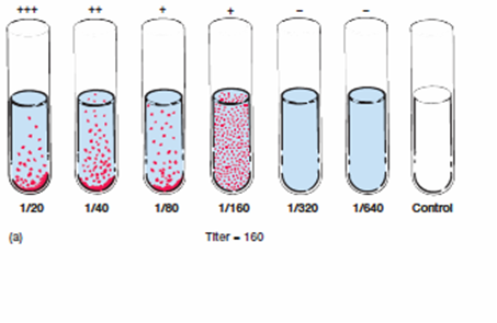 Test Tube Microbiology Tube Agglutination Test For