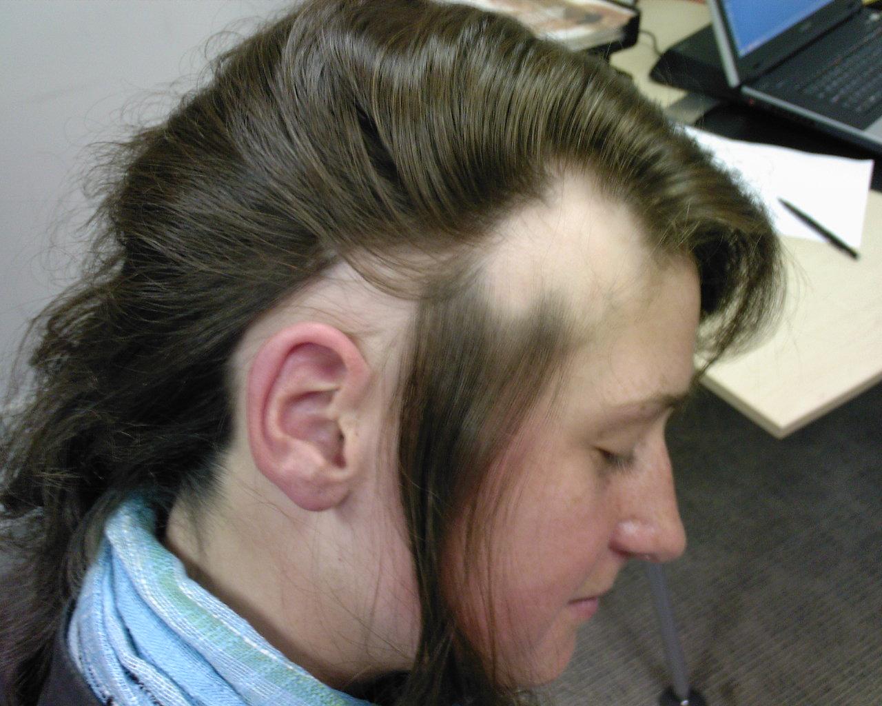 How is hypertrichosis diagnosed? - Hair Diseases (Hair ...