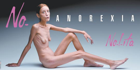 anorexic person in world. anorexic person in world.