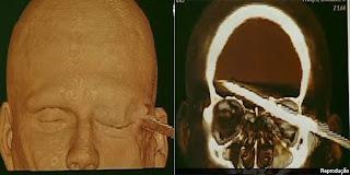 Tomografia de arpão na cabeça de mergulhador