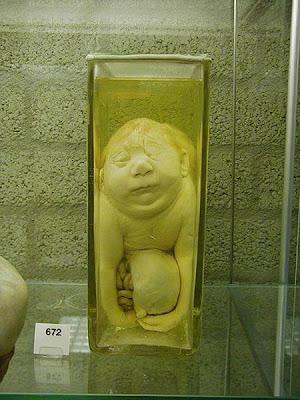 bottled babys06 Museum Khusus Koleksi Bayi Dalam Botol