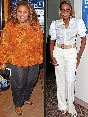 efore and after weight loss