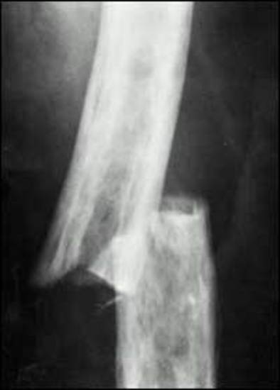 Jays Physio Skeletal Fractures