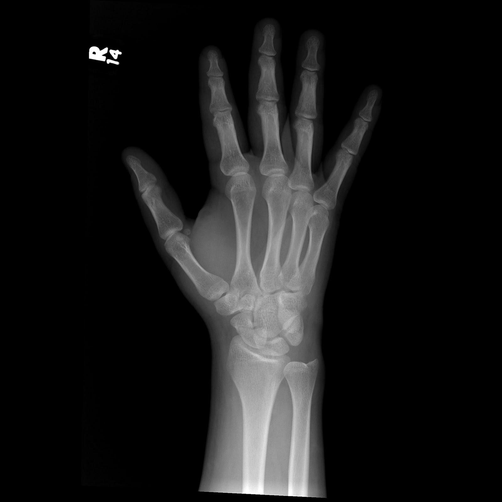 Scaphoid Fracture-2.bp.blogspot.com