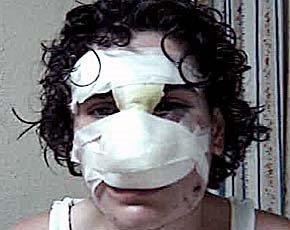 Identifican agresor jóven; lo demandarán por un millón de pesos