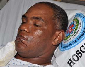 El capitán herido habría encañonado chofer ambulancia para que no trasladara a Florián al hospital