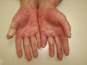 psoriase palmar