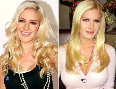 heidi montag after surgery. heidi montag before and after