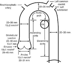 merce furthermore Leaf Blower Wiring Diagram besides Buick Skylark Fuse Box Diagram additionally Buick Skylark Wiring Harness together with 1972 Buick Riviera Wiring Diagram. on 1972 buick skylark