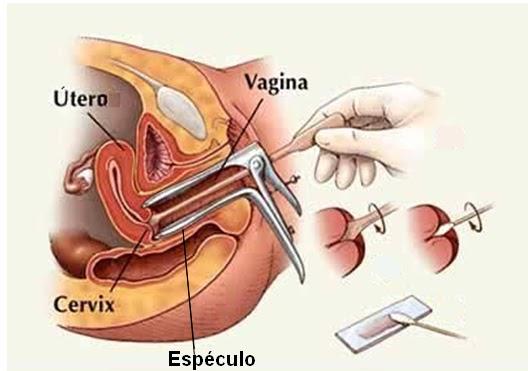 CANCER EPIDERMOIDE INFILTRANTE DEL CUELLO UTERINO. DR