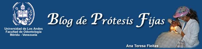 Blog de prótesis fijas