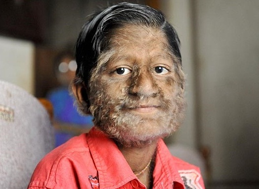 Lion Face Syndrome Is it hairy face disease,