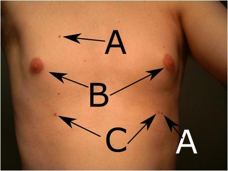 Supernumerary Nipple: Background, Pathophysiology ...