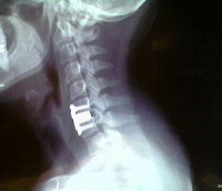 X-Ray after fusion