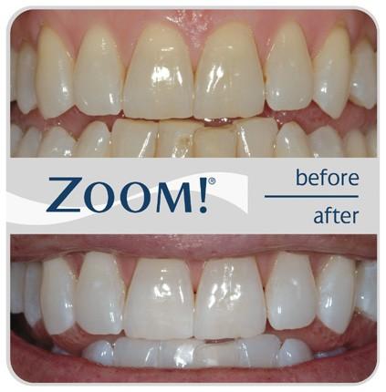 Сколько стоит сделать зубы побелее