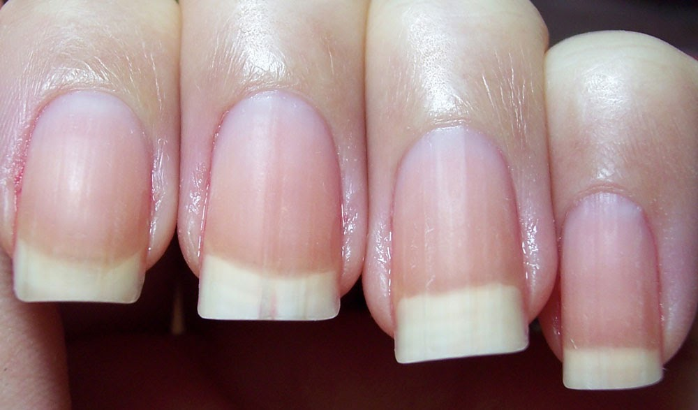 Why My Nails Have Lines   Best Nail Designs 2018