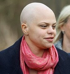 Jade Goody bald