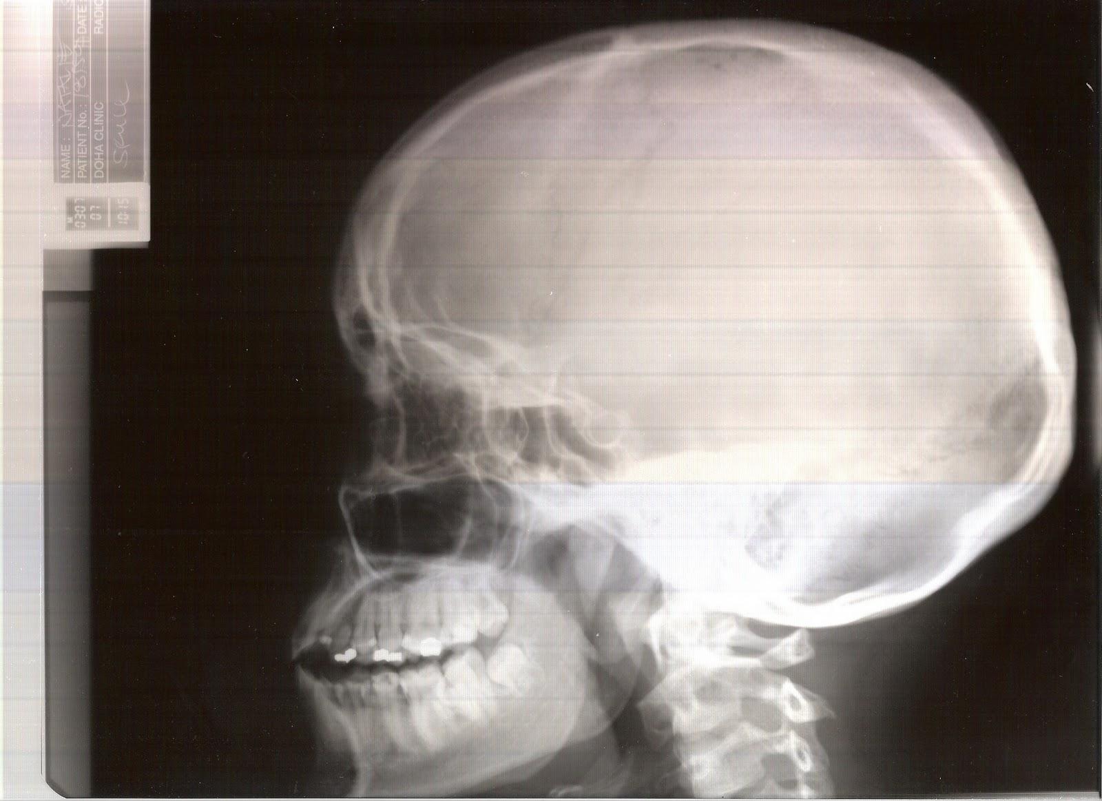 Skeletal Metamorphosis- profile viewX Ray Skull Views