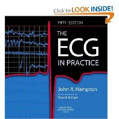The ECG In Practice 1