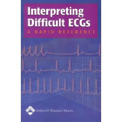 Interpreting Difficult ECGs: A Rapid Reference Ecg