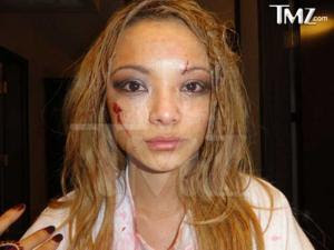 Tila Tequila Attacked Video