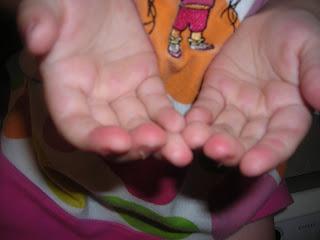 fingers peeling vitamin deficiency
