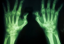 Hands Xray